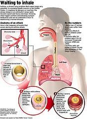 asthma_how_it_works